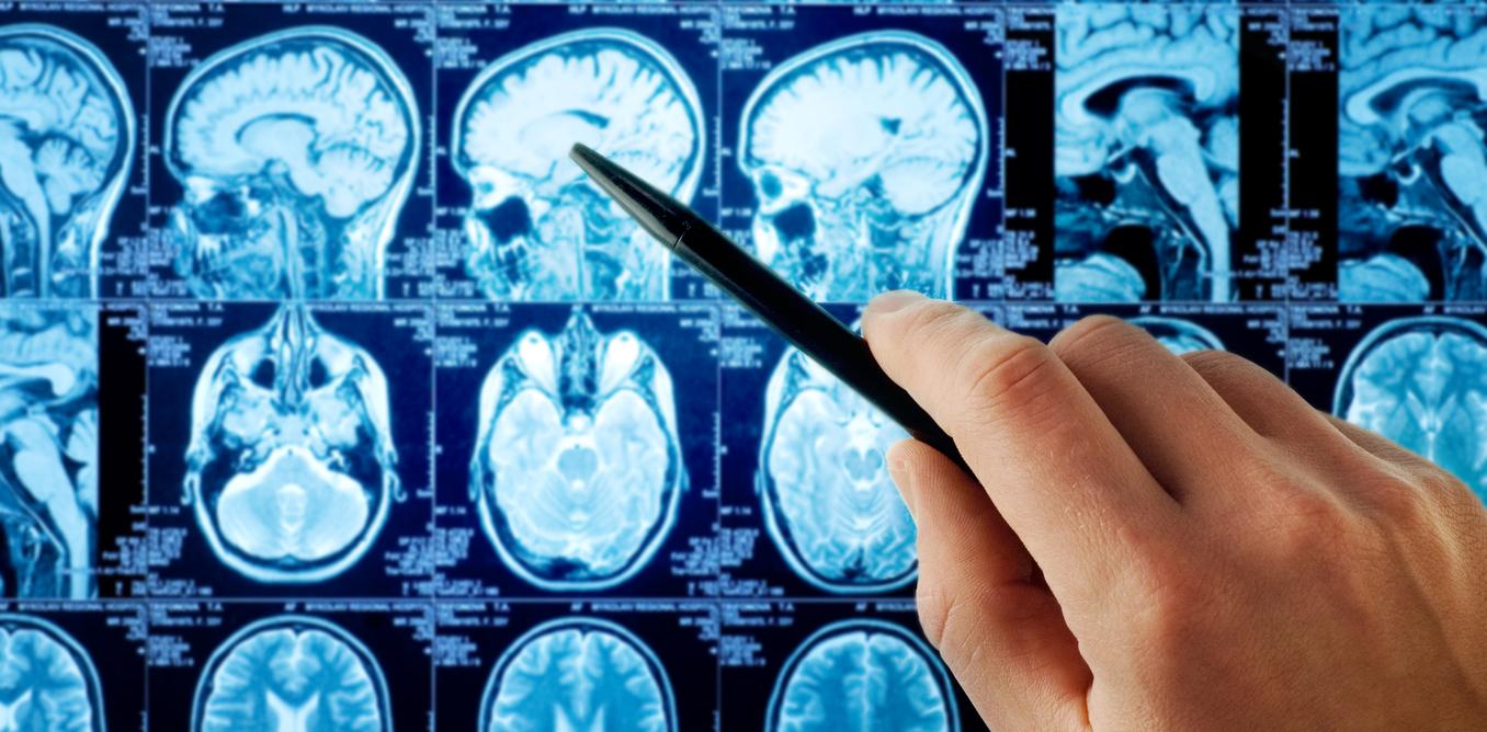 brain organoids